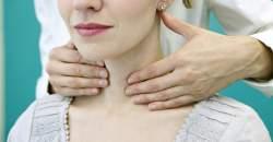 9 vecí, ktoré by ste mali vedieť o svojej štítnej žľaze