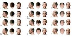 Trpíte vypadávaním vlasov? V ktorej fáze vypadávania sú vaše vlasy a čo vtedy pomôže?