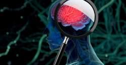 Nová nádej v liečbe Parkinsonovej choroby - hĺbková stimulácia mozgu