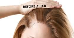 Transplantácia verzus mezoterapia vlasov - nové metódy na záchranu vlasov