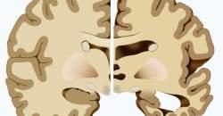Nová štúdia vedcov o Alzheimerovej chorobe: prečo dochádza k odkrveniu mozgu?