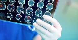 Cievna mozgová príhoda (mŕtvica): keď o živote rozhodujú minúty