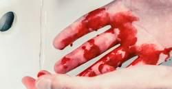 VIDEO: Prvá pomoc pri krvácaní