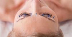 Akupunktúra a homeopatia - trochu iný pohľad na liečbu