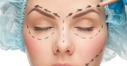 Plastická operácia očných viečok nie je len kozmetický zákrok