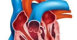 Rakovina srdcovej predsiene (atriálny myxóm)