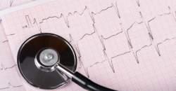 Elektrokardiografia (EKG)