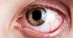 Keď oči svrbia a pália