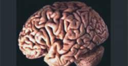 Týždeň uvedomenia si mozgu