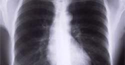 Očkovanie proti pneumokokom
