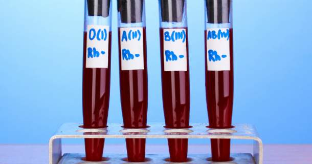 Poznáte svoju krvnú skupinu a viete, čo je pre ňu dobré?