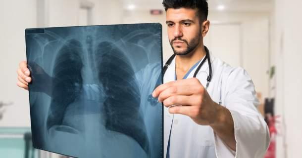 Pľúcna embólia - čo o nej treba vedieť?