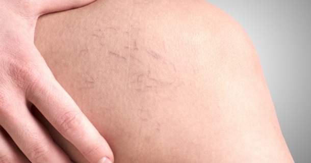 5 rád, ako zatočiť s kŕčovými žilami