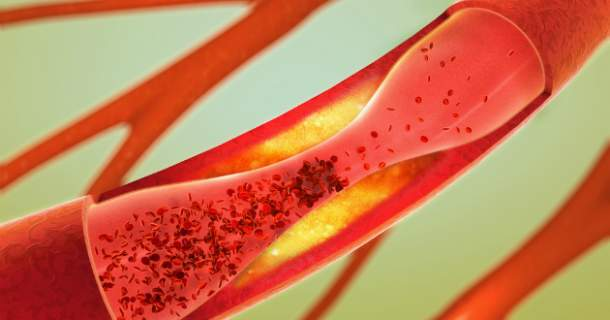 Arterioskleróza - čo nám ničí cievy a ako ich zachrániť?
