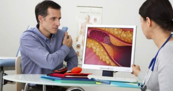 Revolučný CAC scanning: vyšetrenie, ktoré nám zachráni cievy?