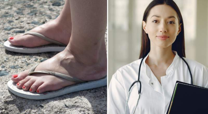 Lekárka vysvetľuje: toto sú dôvody, prečo vám v lete opúchajú nohy!